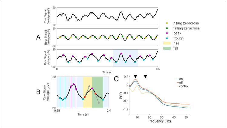 Noninvasive Electrophysiological Biomarker for Parkinson's Disease