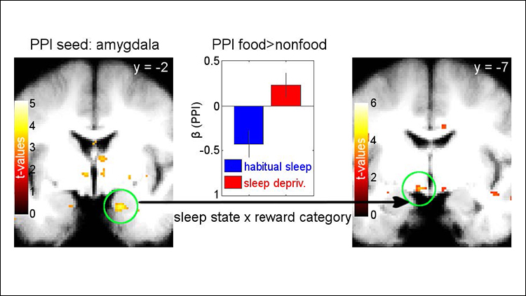 Unraveling the Link Between Obesity and Sleep