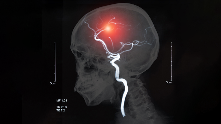 What Are The Different Types Of Stroke And How Do They Affect The Brain