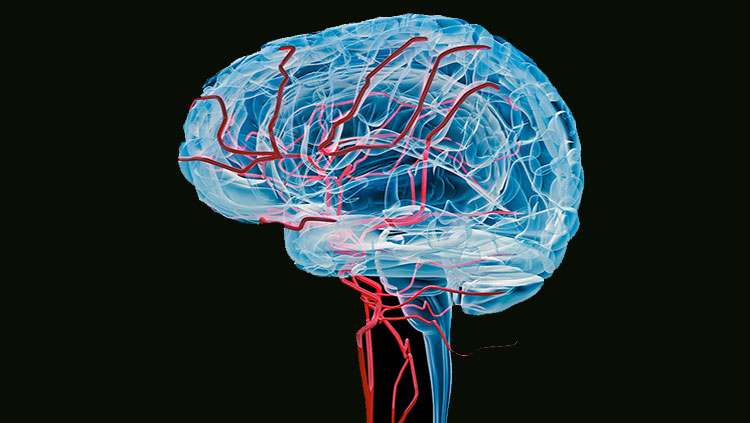 Brain with bloodvessels x-ray (Side)