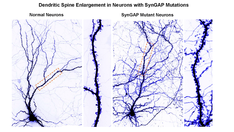 SynGap Mutant Neurons
