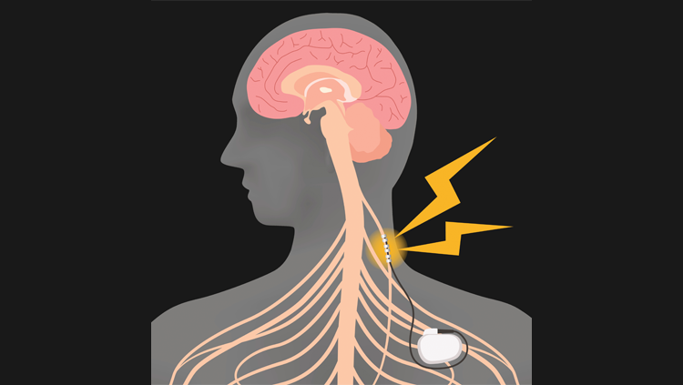 Illustration of human outline with brain inside of head