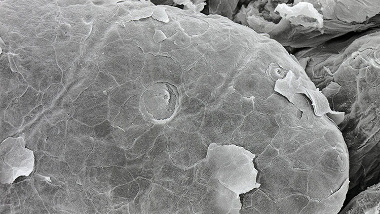 fungiform papilla on tongue