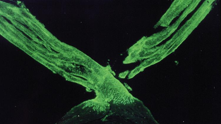 zebrafish optic chiasm green