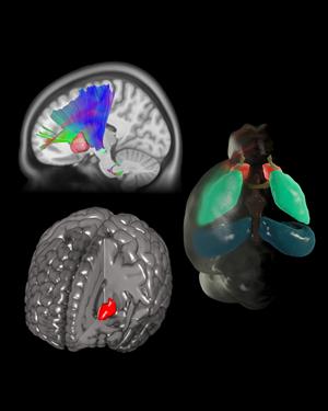 A mutation in a human axon guidance gene