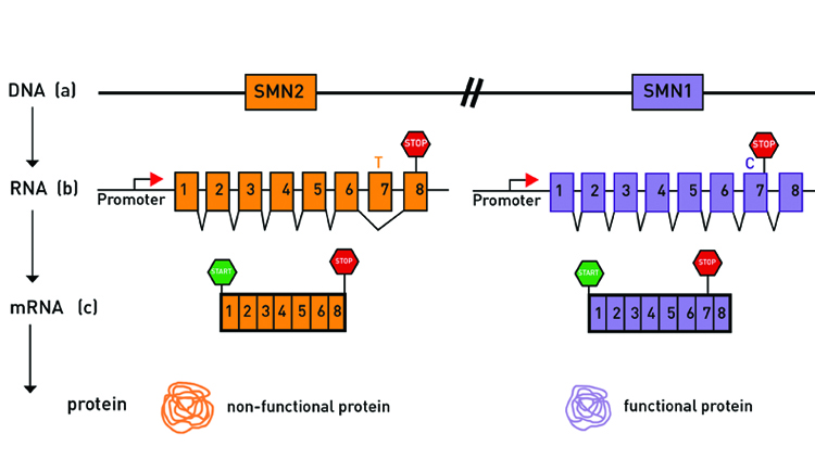 The difference of a single nucleotide — or letter in the genetic code — is what separates the fully functional SMN1 gene from the less functional SMN2 gene. SMA results from mutations in the SMN1 gene. Courtesy of Cure SMA, 2019.