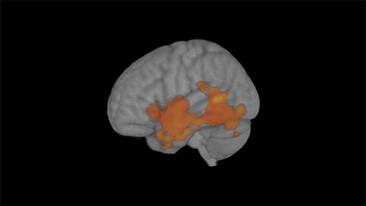Brain Changes Associated With Low Level Cannabis Use in Teenagers