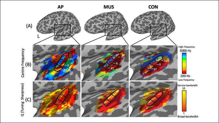 Pitch Perfect: Brain Differences Behind a Rare Musical Ability