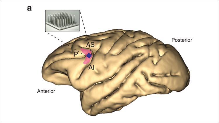 Ritalin Has No Effect on Primate Prefrontal Cortex