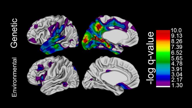 Genetic Factors Influence Human Brain Expansion