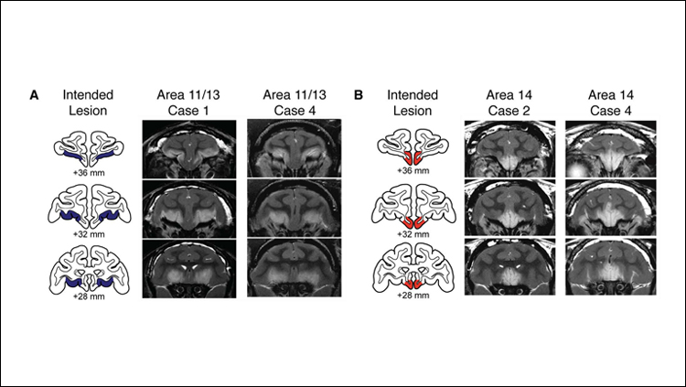 Orbitofrontal Cortex Regulates Threat Response in Monkeys