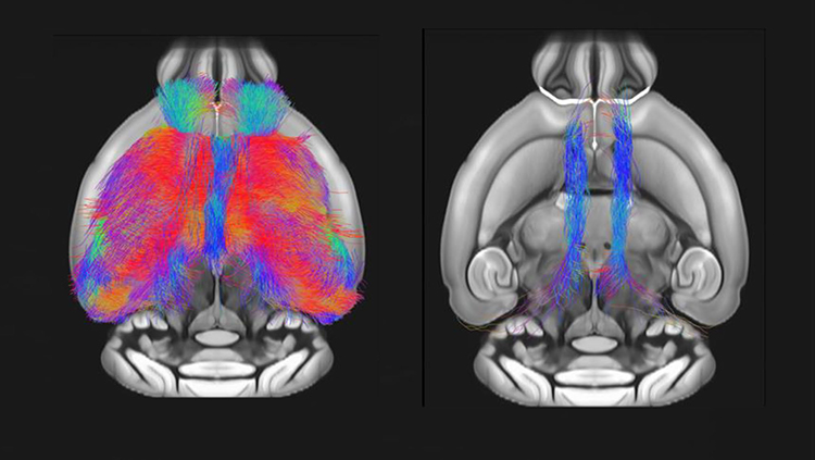 Autism Gene Linked to Brain and Behavior Deficits in Mice