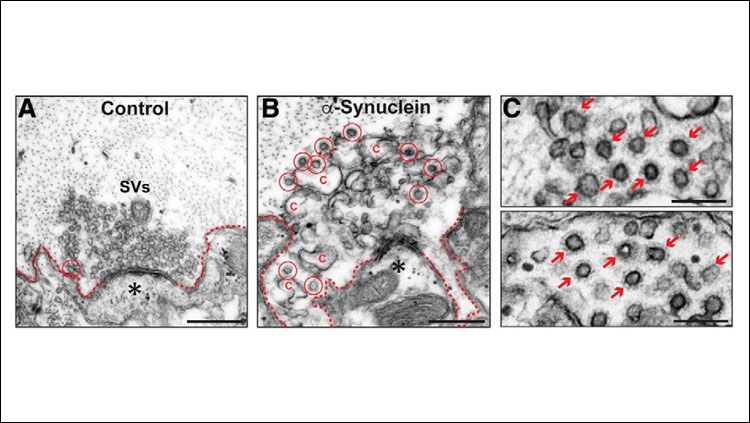 Excess α-synuclein impairs the uncoating of clathrin-coated vesicles during synaptic vesicle recycling.