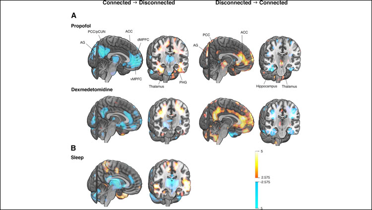 Differences in relative rCBF between connected and disconnected states of consciousness. A central core network of consciousness was revealed by imaging anesthetic-induced and sleep-induced state transitions. Cool colors show the largest relative suppression on becoming disconnected and warm colors the smallest (left); and warm colors show the largest relative activation on becoming connected and cool colors the smallest (right; p < 0.01, corrected; color bars depict bootstrap ratios in PLS).  See figure 3 in paper for more details