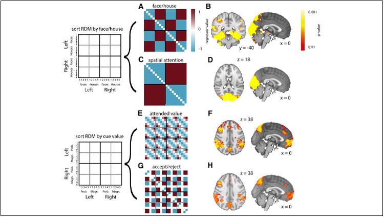 Medial Frontal Cortex Activity Predicts Information Sampling in Economic Choice