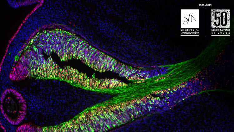 Image from Simultaneous Requirements for Hes1 in Retinal Neurogenesis and Optic Cup–Stalk Boundary Maintenance