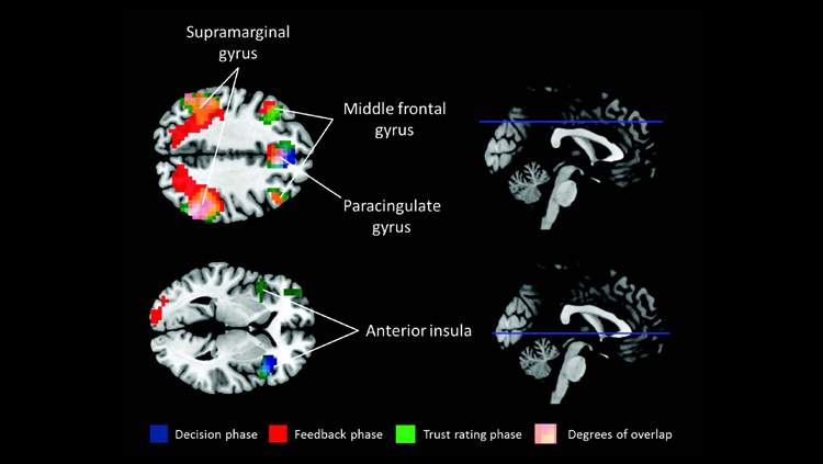 Ecstasy Ingredient May Promote Cooperation