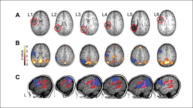 Brain Reorganization Predicts Language Production