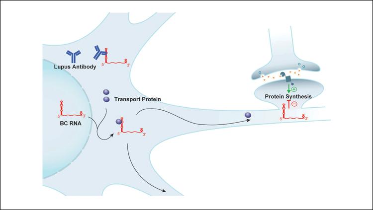 Lupus Antibody Target Identified