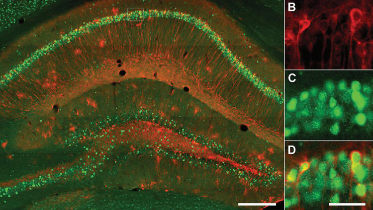 Hippocampal LacZ and cFos staining of a TetTag mouse. A, Fluorescent micrographs of dorsal hippocampal CA1 neurons that were stained for LacZ (red) and cFos (green). Part of the CA1 (dotted line square) was enlarged to show LacZ (B), cFos (C), and the overlapping of LacZ and cFos in engram cells (D). Scale bars: A, 250 μm; B–D, 40 μm.