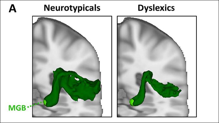 Diving Deeper Into Developmental Dyslexia