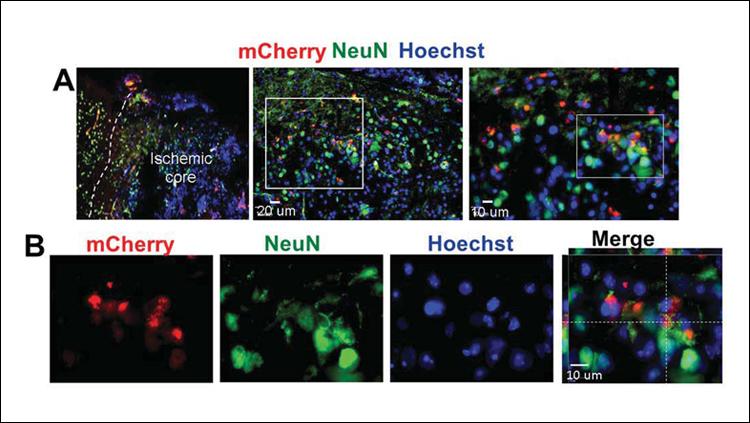 Stem Cell Stimulation Improves Stroke Recovery