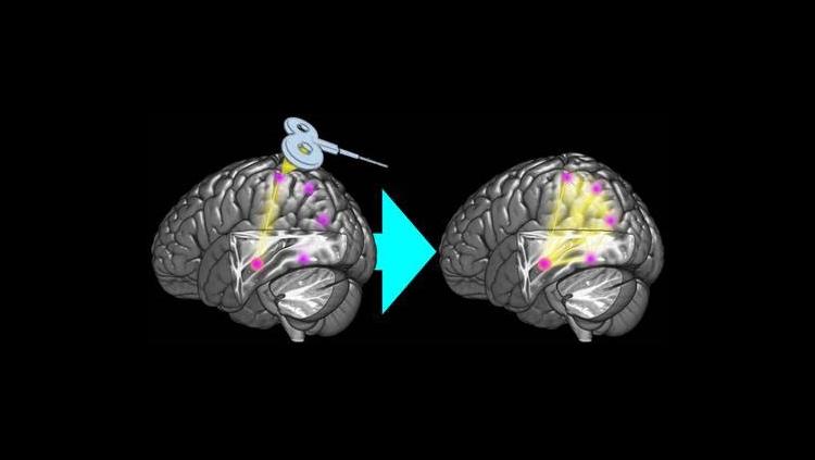 Enhancing memory network via brain stimulation