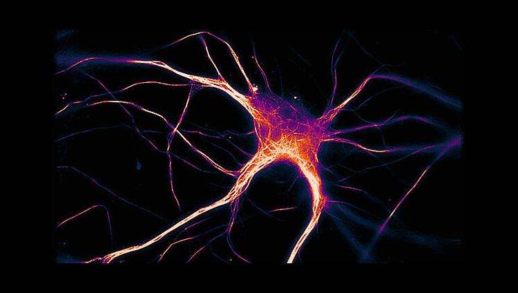 How Alzheimer's disease spreads through the brain
