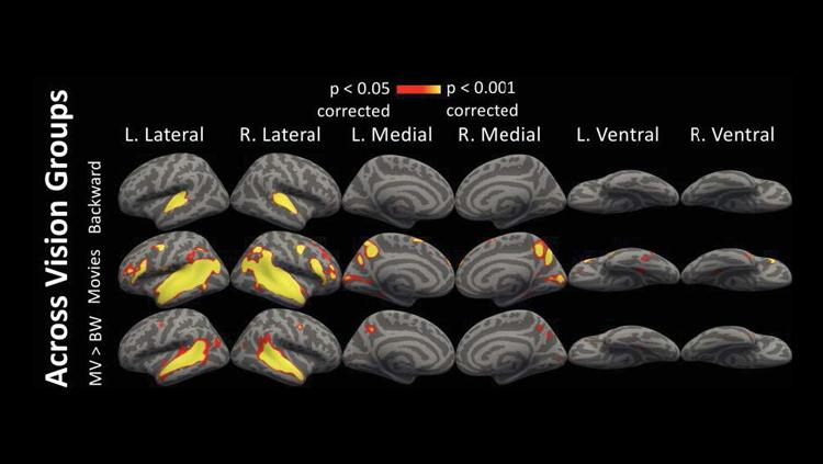 How the brain repurposes unused regions