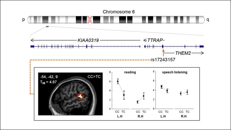 Researchers fail to replicate influential neuroimaging genetics study