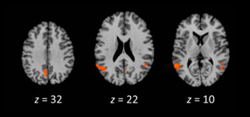 """Telling a story, no matter the medium, activated a """"narrative hub."""" This includes (from left to right) the posterior cingulate cortex, the temporoparietal junction, and the posterior superior temporal sulcus. Source: Yuan et al., Journal of Cognitive Neuroscience 2018"""