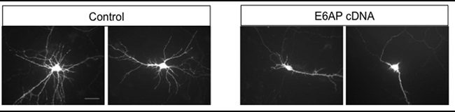 E6AP overexpression reduces the complexity of dendritic arborization
